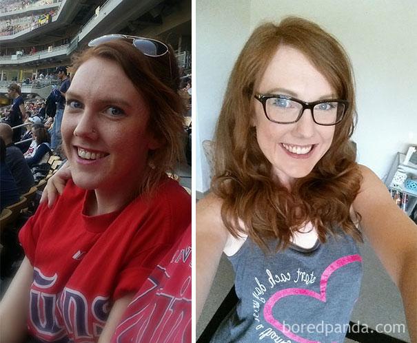 22 - Přestali pít alkohol. Jak se změnila jejich tvář?