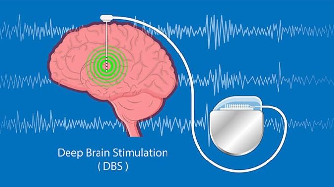 Mozkové implantáty vám změní náladu.