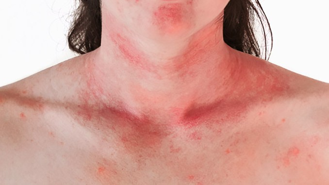 Kopřivka nejčastěji souvisí s alergickou reakcí.