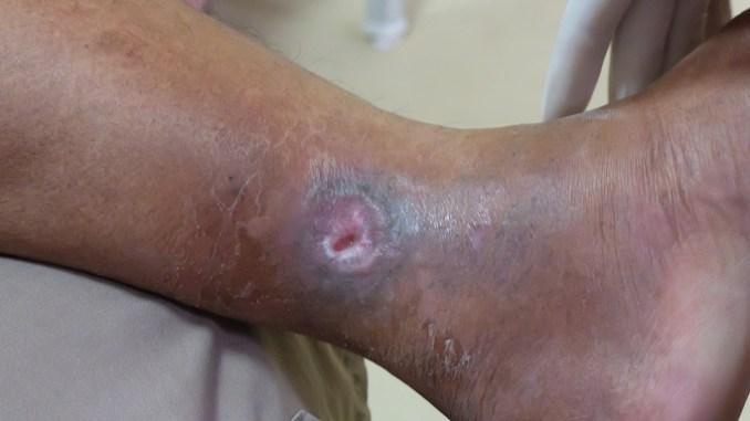 Při bércových vředech dochází k rozpadu až odumření kůže.