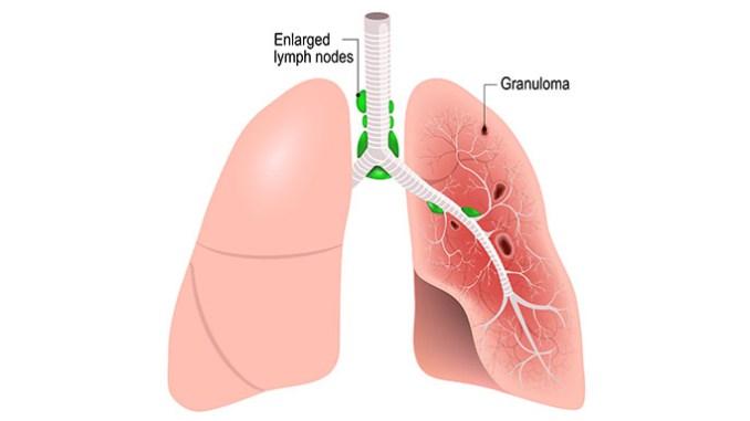 Sarkoidóza zasahuje především plíce.