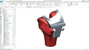 Es entsteht eine perfekt an den Knochen angepasste Prothese.