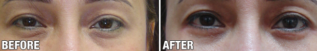 Before-After-Blepharoplasty-1