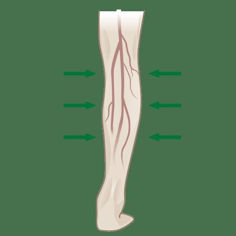 kompressionstherapie enk orthopadie