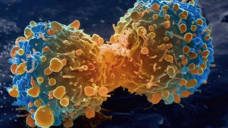 Investigadores de la Universidad Hebrea se asocian con firma estadounidense para combatir el cáncer