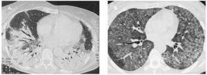 Un nuevo estudio realizado en Wuhan, China ha descubierto cambios patológicos de pulmón en las tomografías de pacientes completamente asintomáticos.