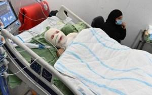 Niño árabe con quemaduras