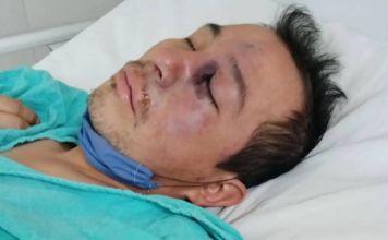 Un hombre de 34 años fue diagnosticado con mucormicosis, también conocido como hongo negro, en el Estado de México