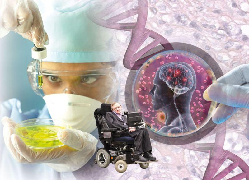 Las células inmunitarias hiperactivas en el cerebro pueden desempeñar un papel en el desarrollo temprano de la Esclerosis Lateral Amiotrófica (ELA)