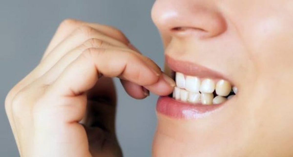 Morder las uñas rara vez es peligroso, pero puede comprometer la salud, especialmente si se remueve debajo de esta ya que cambia su estructura