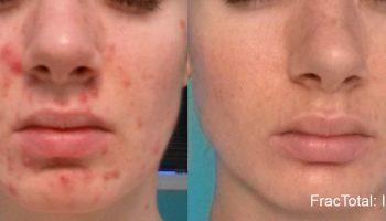 skin-tightening3