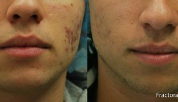 skin-tightening4