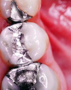 Elad Lassry, CNRI Plombages dentaires. Avec l'aimable autorisation de l'artiste