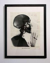 Picture Industry - Luma Arles - Deuxième partie - Meret Oppenheim, Enwurf für X-ray, 1978