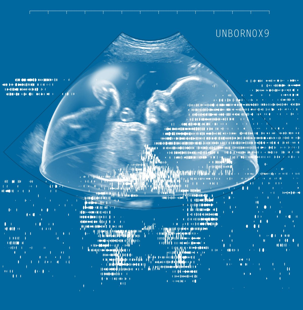Future Baby Production - Unborn0x9, 2020 © Future Baby Production