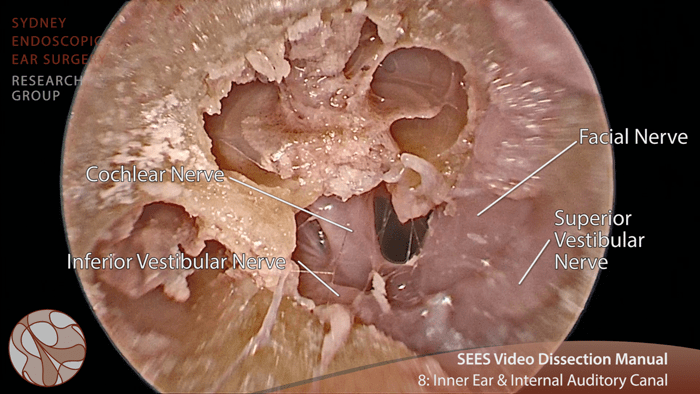 Video otology tutorials: how EES changes the game   ENT ...
