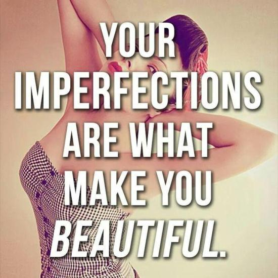 your imperfections are what makes you beautiful