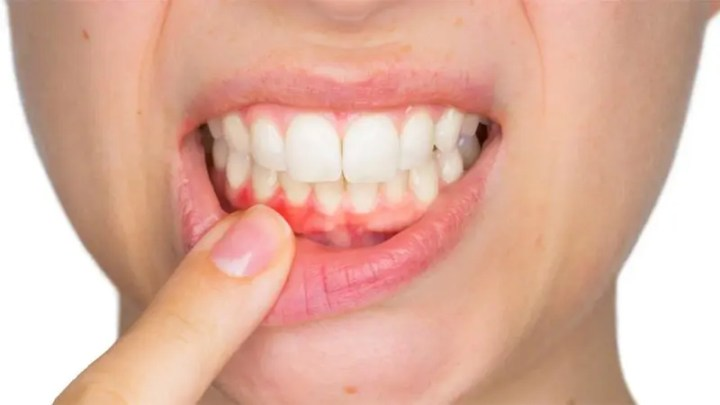 ¿Cómo afecta tener poca vitamina C a las encías?