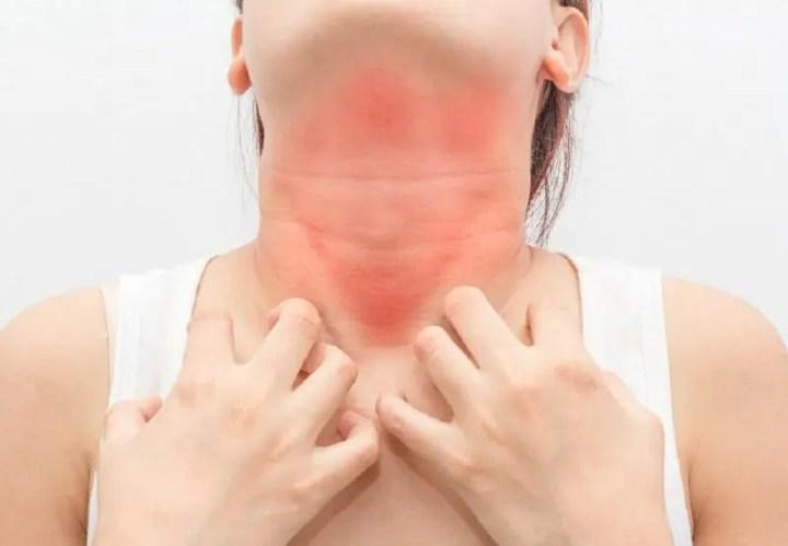 ¿Se puede ser alérgico al colágeno?