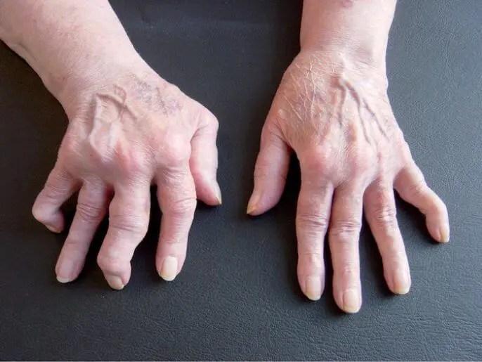 Los suplementos de garra de gato combaten la artritis rematoide