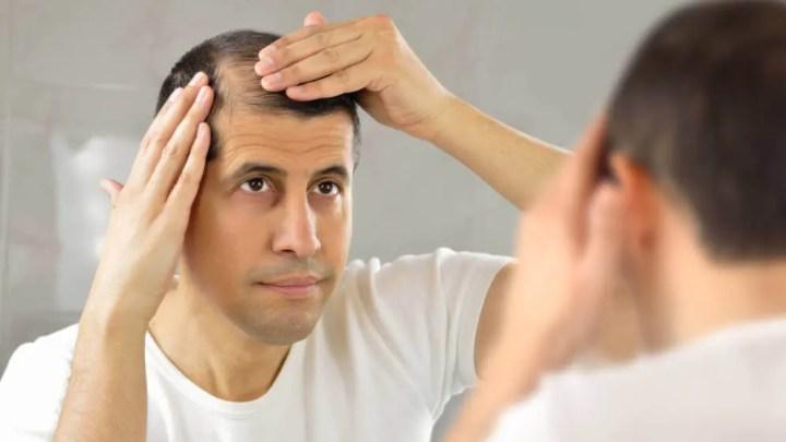 El Saw Palmetto puede prevenir la caída de cabello masculina