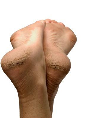 Tratamiento para pies agrietados