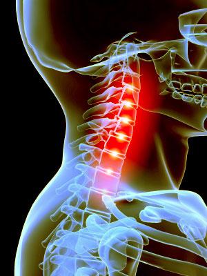 Ejercicios-para-acabar-con-el-dolor-de-cervicales