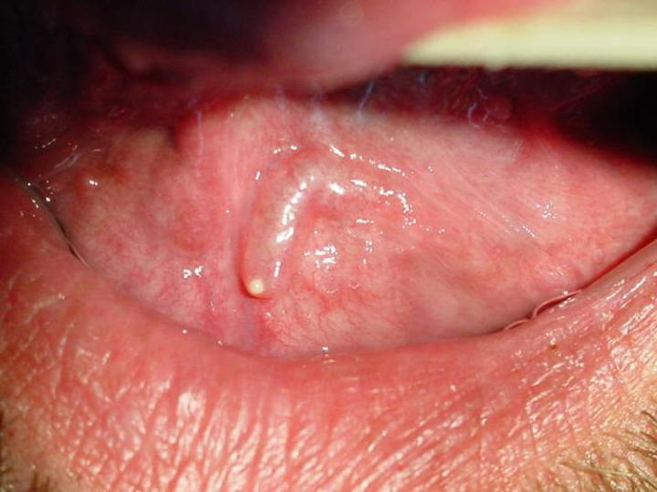 Herpes Through A Tiny Drop Of Saliva? 3