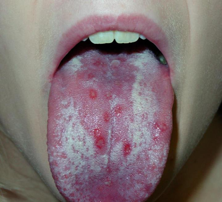 Herpes On The Tongue? 2