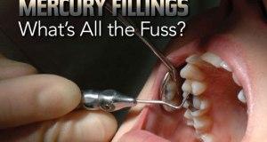 Mercury: CSOs demand end to Africa's use of dental amalgam mercury fillings
