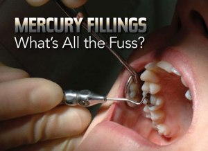 mercury-fillings  Mercury: CSOs demand end to Africa's use of dental amalgam mercury fillings 300x218