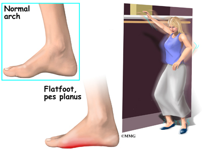 Acquired Flat Feet