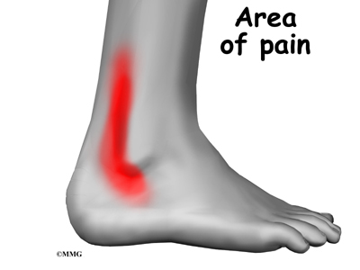 https://i2.wp.com/www.eorthopod.com/sites/default/files/images/ankle_peroneal_tendinitis_symptoms01.jpg