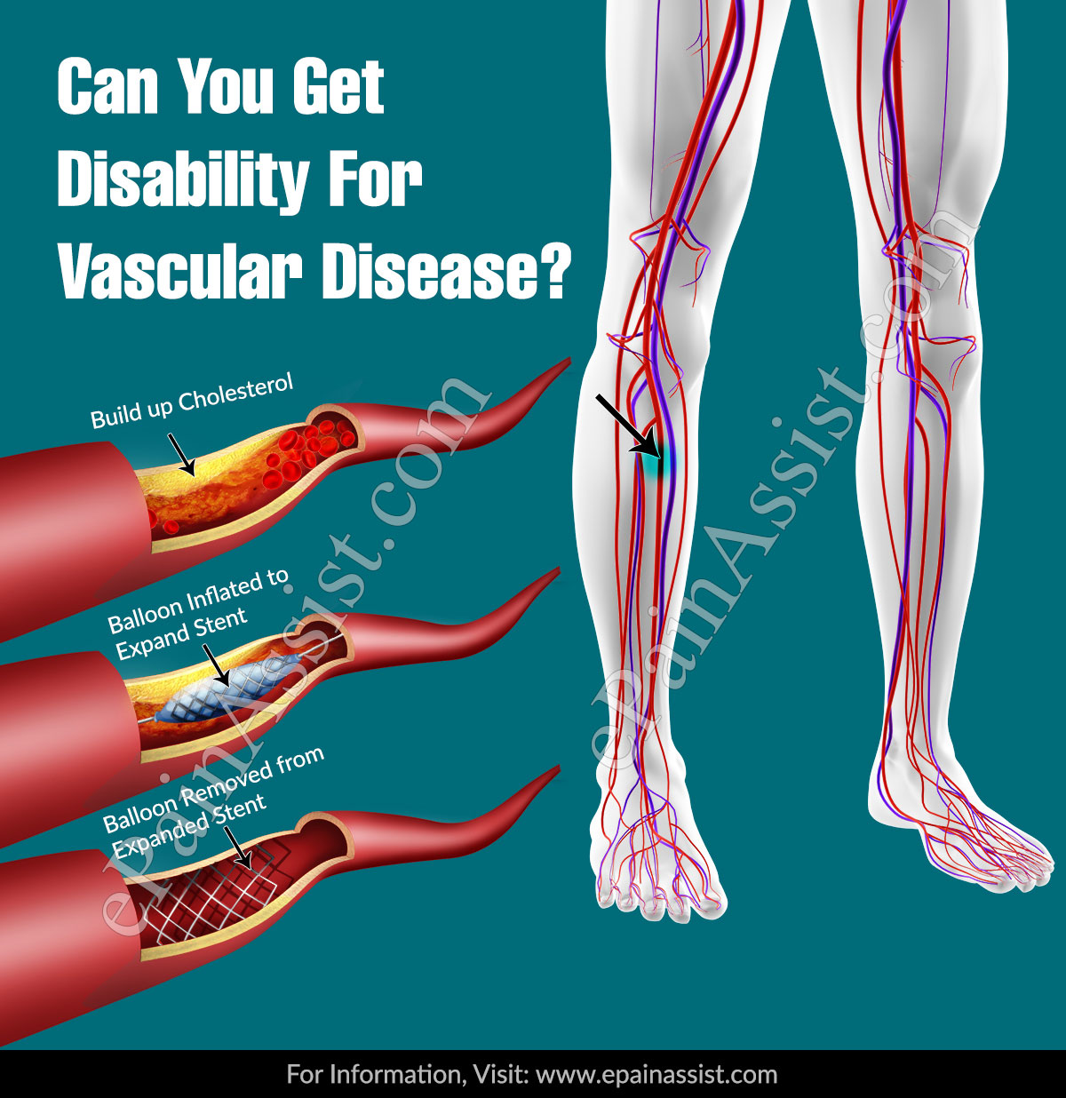Can You Get Disability For Vascular Disease