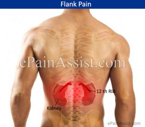 What Can Cause Pain in the Flank Region?