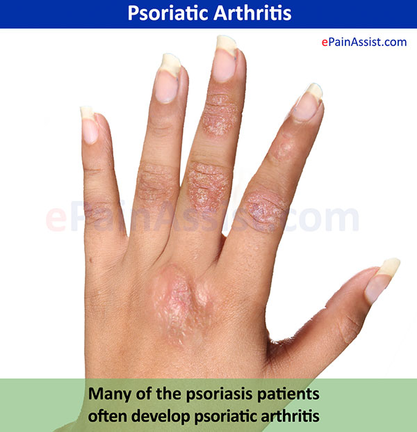 Psoriatic Arthritis Types Causes Symptoms Treatment Gesics Dmards Surgery