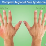 Residual Crps After Auto Accide