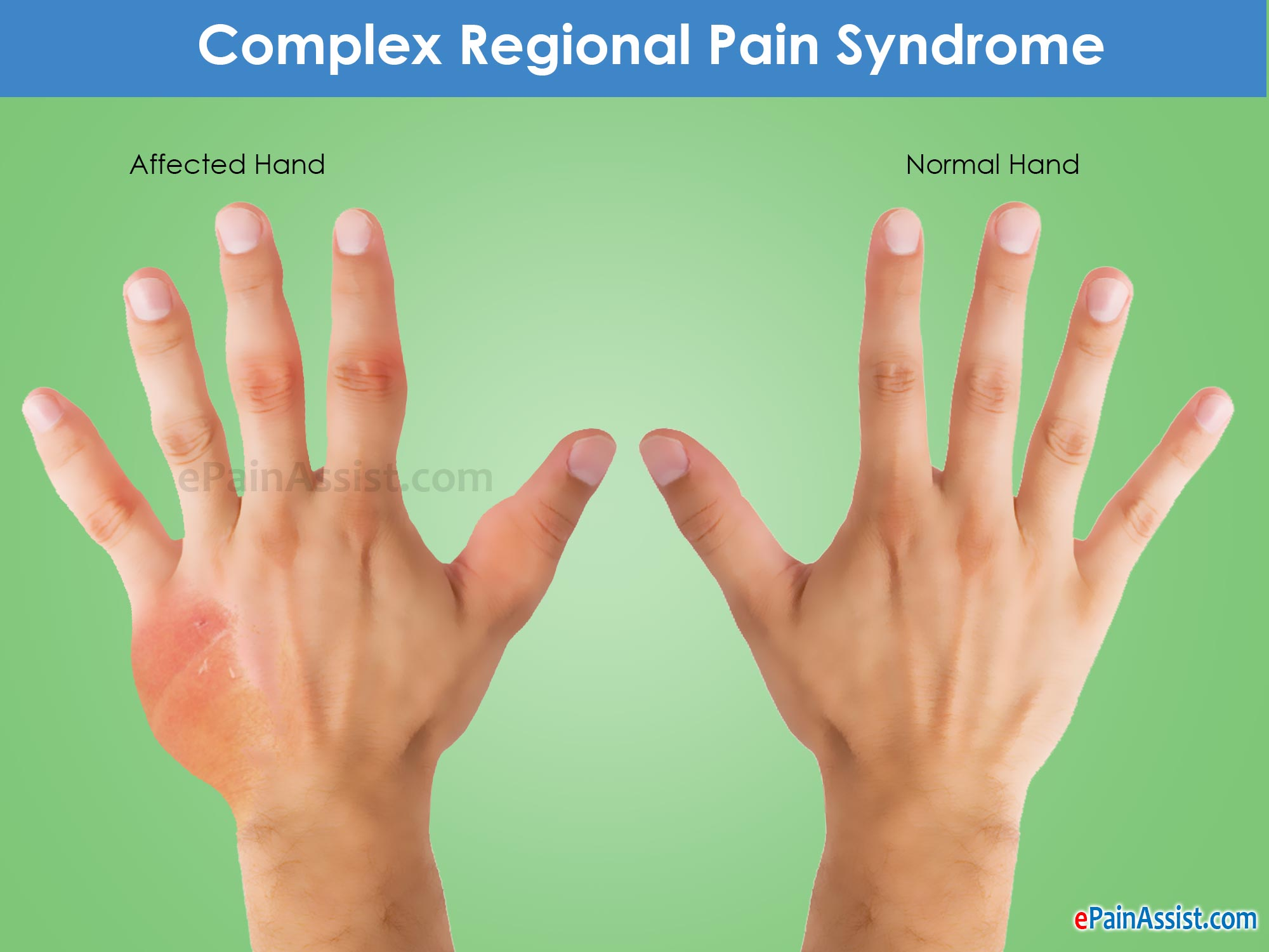 Residual Crps After Auto Accident