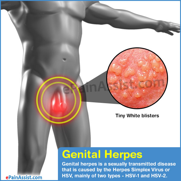 Can You Get Genital Herpes From Masturbation.?  2