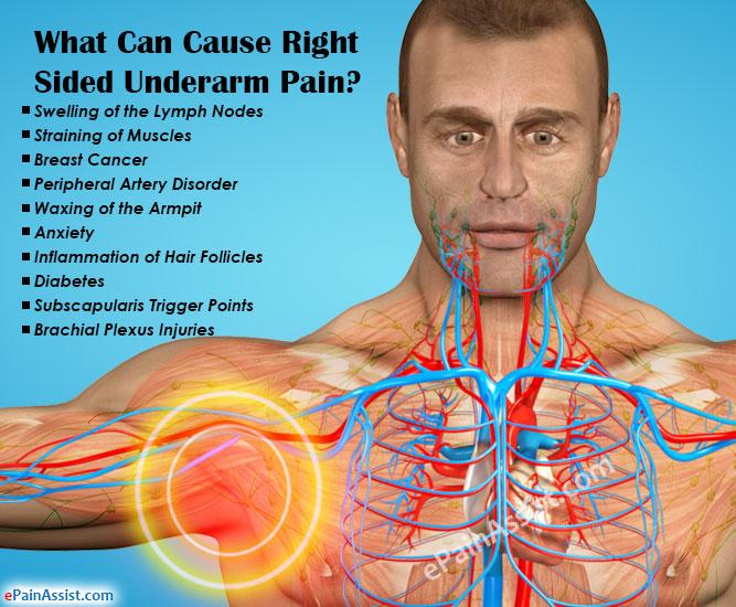 What Causes Lymph Nodes Hurt