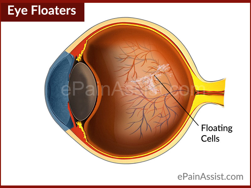 Eye Floaters|What Causes Floaters in Eye and How to Get ...