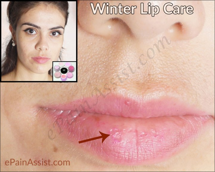 Winter Lip Care Natural Home Remes For Chapped Lips