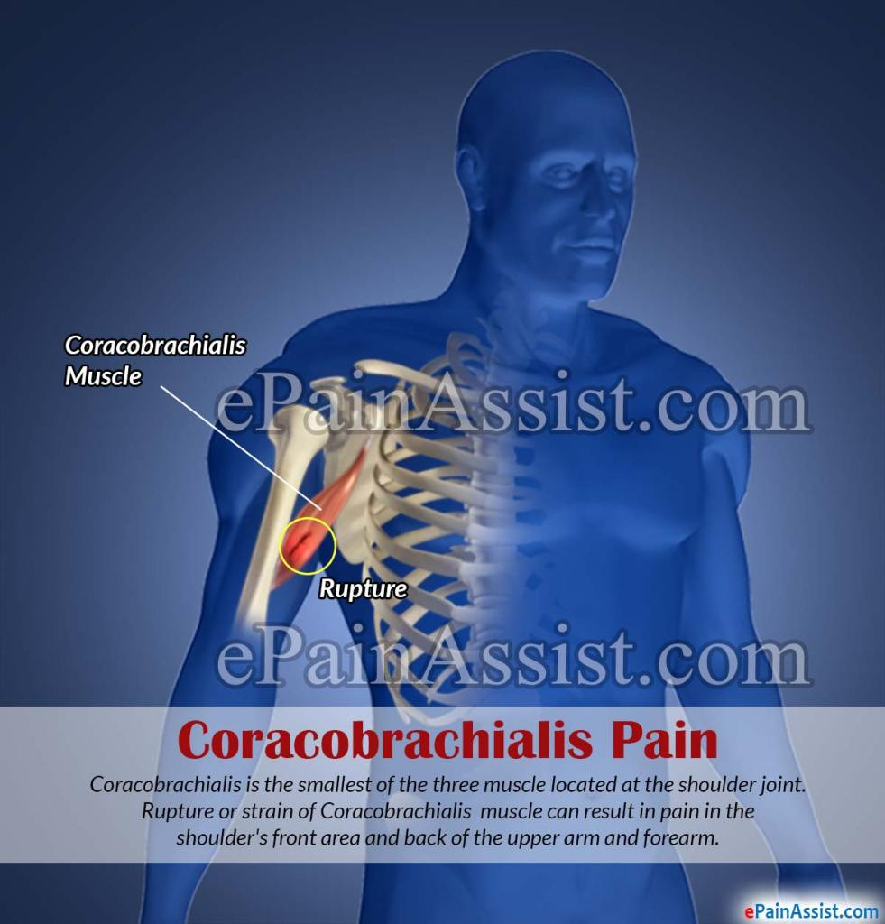 Coracobrachialis Pain Or Straincausessymptomstreatmentexercise