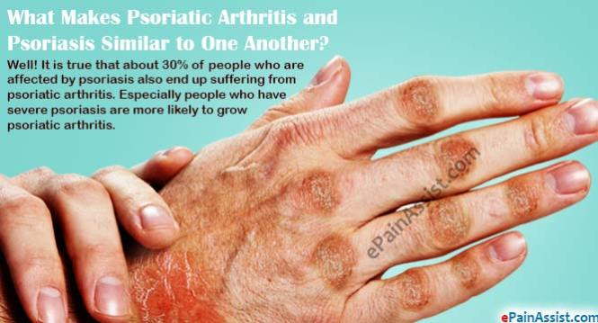 Dermatologists At Ucla Treat Psoriatic Arthritis A Form Of Ociated With Psoriasis