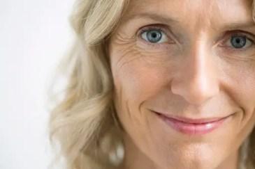 collagen wrinkles