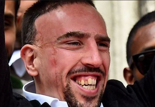 Franck Ribery scars on face
