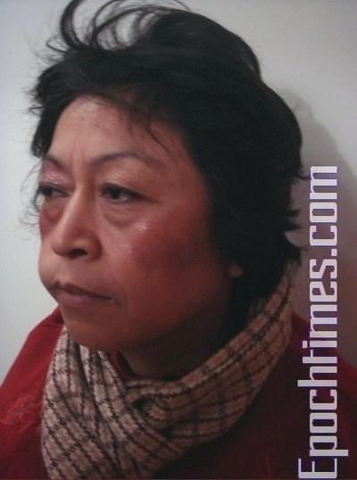 Шанхайская апеллянтка Ши Жуйсинь после избиения представителями власти. Фото: The Epoch Times
