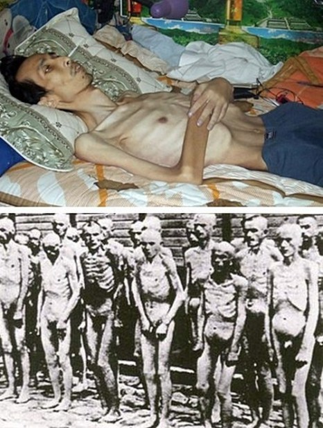 На верхнем фото Чэнь Цзяньчжун, последователь Фалуньгун, после заключения в лагере. На нижнем фото узники нацистского лагеря Освенцим. Фото с epochtimes.com