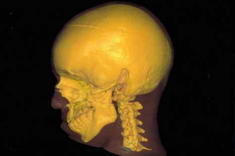 Учёные определили возраст начала старения человека. Старение организма начинается тогда, когда мозг перестаёт вырабатывать миелин. Фото: Nasa/Getty Images