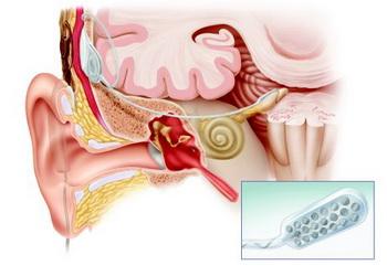 Изображение из House Research Institute (Научно-исследовательского института семьи), на котором показано, как происходит процедура внедрения в ствол мозга. Фото предоставлено House Research Institute